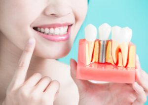 factors how long does a dental implant take Epping